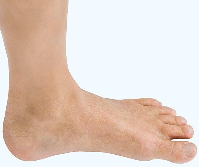plötslig smärta i fotleden