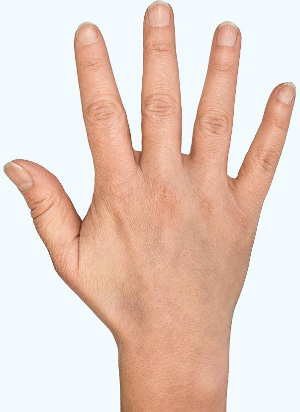 små knölar under huden på fingrarna